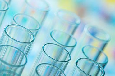 Reagenzglas im Labor