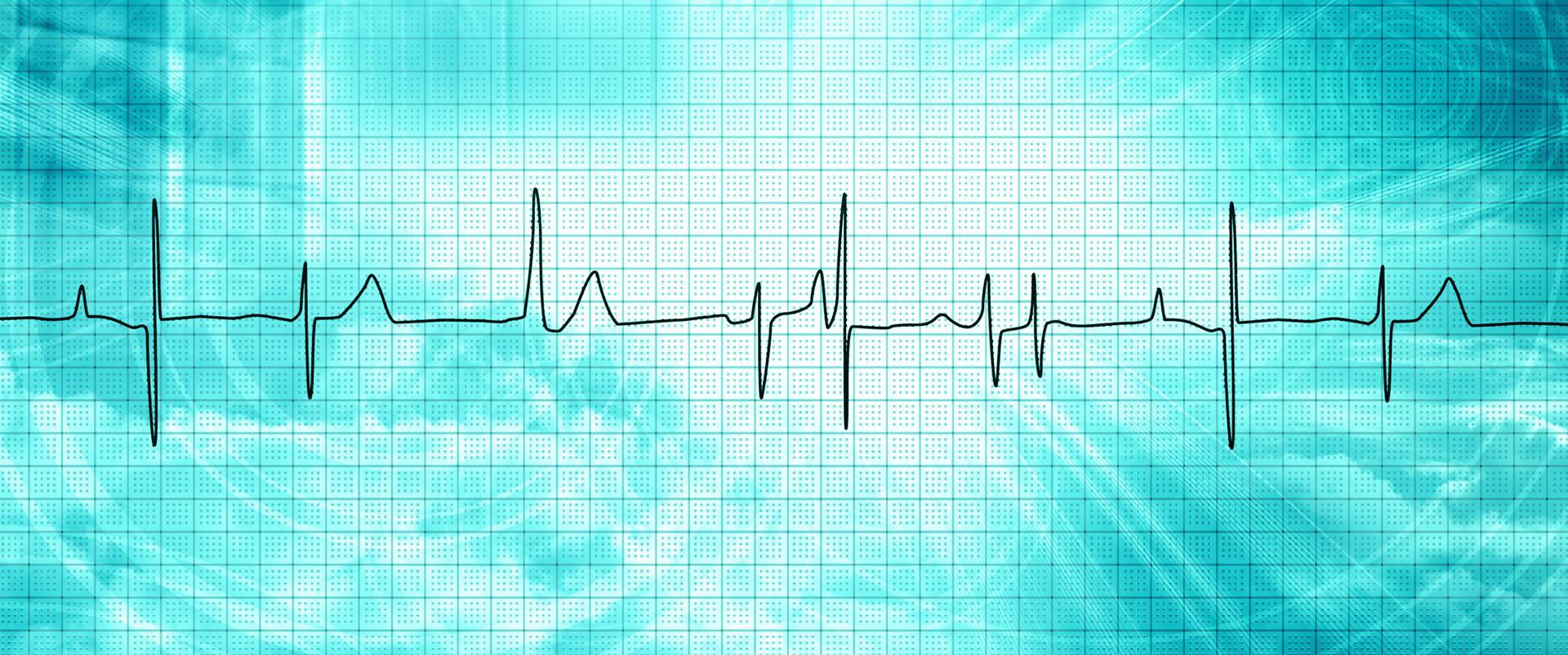Grafische Darstellung einer Herzschlag-Kurve