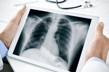 Arzt beurteilt eine Röntgenaufnahme auf dem Tablet