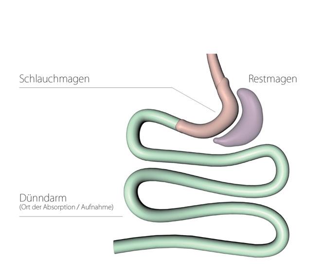 Grafische Darstellung Schlauchmagen (Gastric Sleeve Resection)